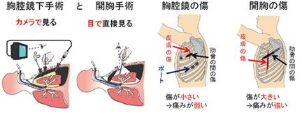 自然 治癒 気胸 2度の気胸でわかった【再発との違い】症状、原因、治療方法など